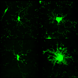 Microglia goes nuts after AraC in prion (from Gomez-Nicola et al., J Neurosci 2013)